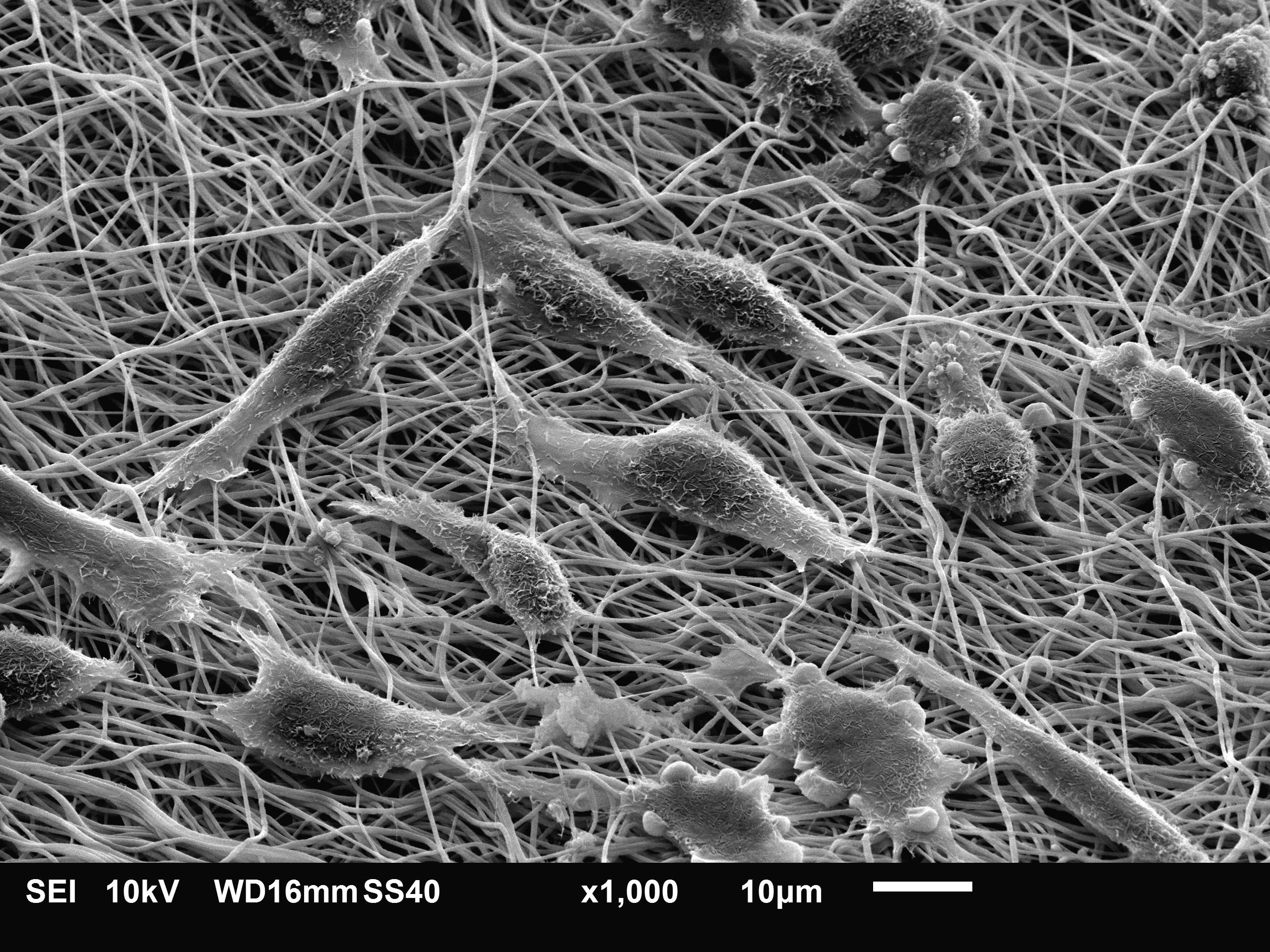 Фибробласты репрограммировали в дендритные клетки