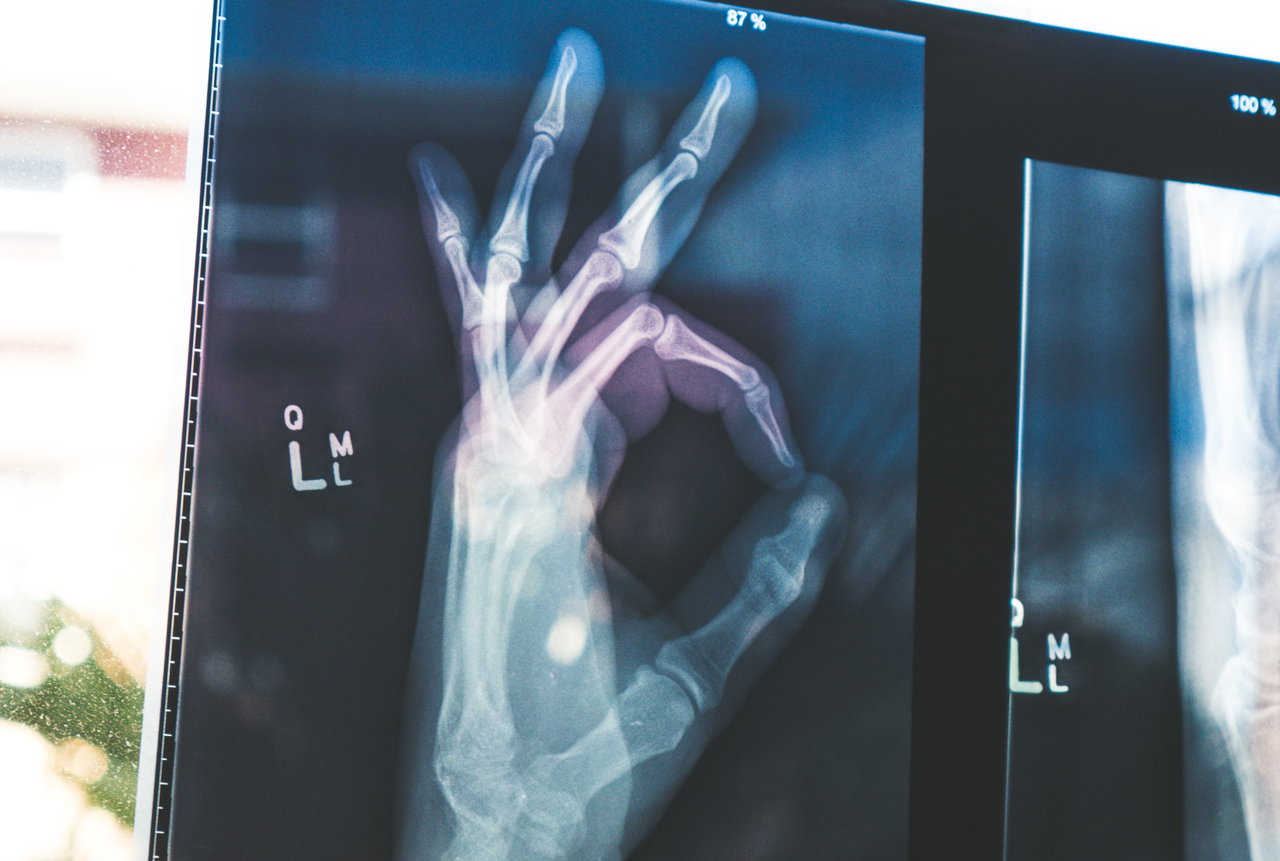 О роли стволовых клеток периоста в восстановлении костной ткани