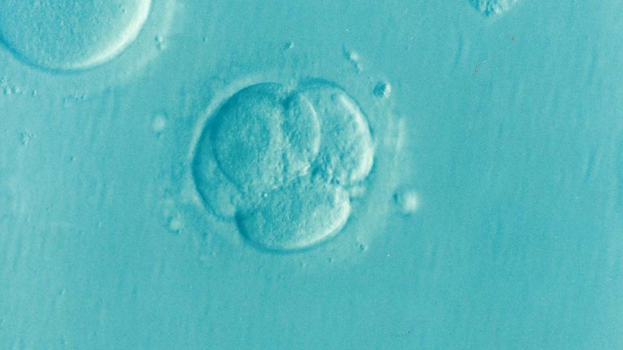 Найден способ получения стволовых клеток эмбриона из фибробластов кожи