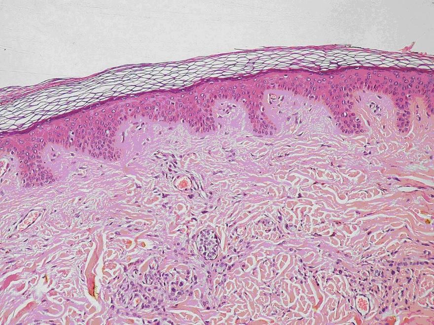 Продемонстрирована возможность превращения стволовых клеток в клетки кожи на поверхности открытых ран